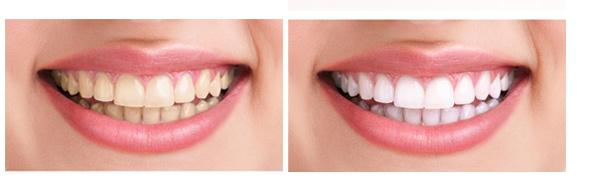 До и после отбеливания зубов Beyond Polus