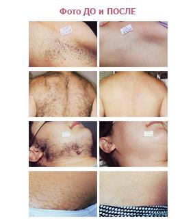 Фото результатов до и после лазерной эпиляции