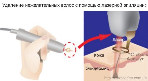 Лазерная эпиляция Киев